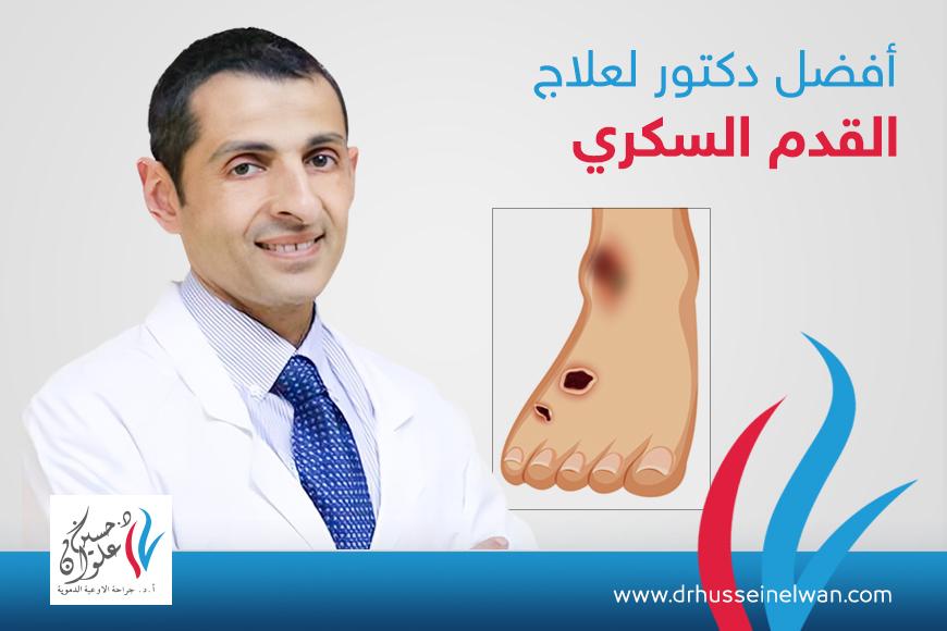افضل دكتور لعلاج القدم السكري