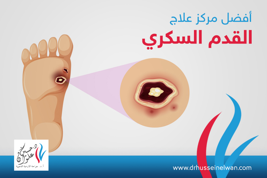 مركز علاج القدم السكرى بالقاهرة