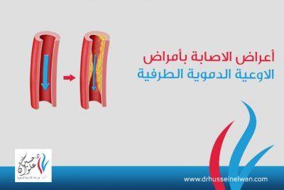 أعراض الإصابة بأمراض الأوعية الدموية الطرفية وطرق علاجها