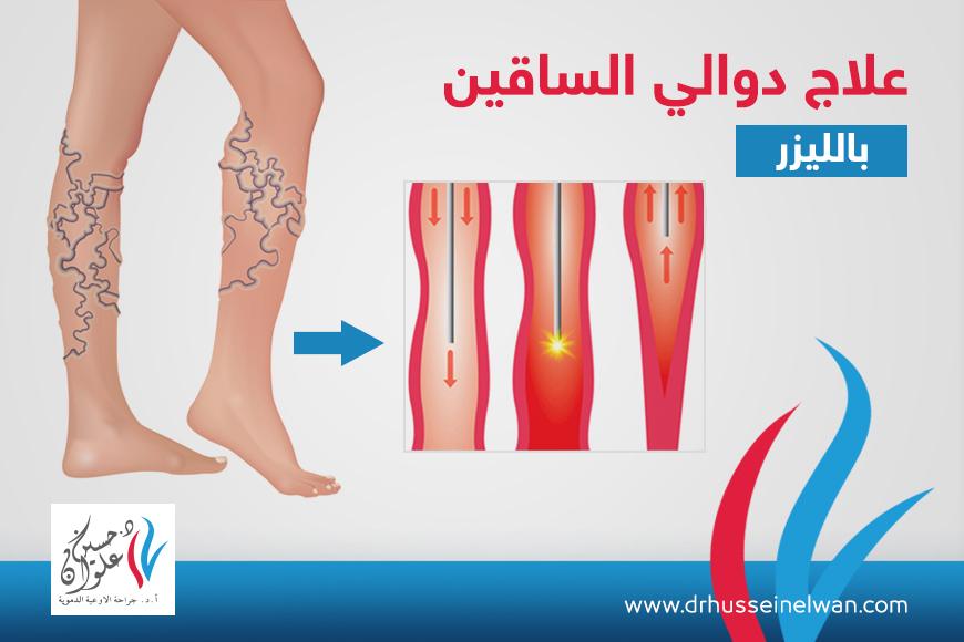 علاج دوالي الساقين بالليزر