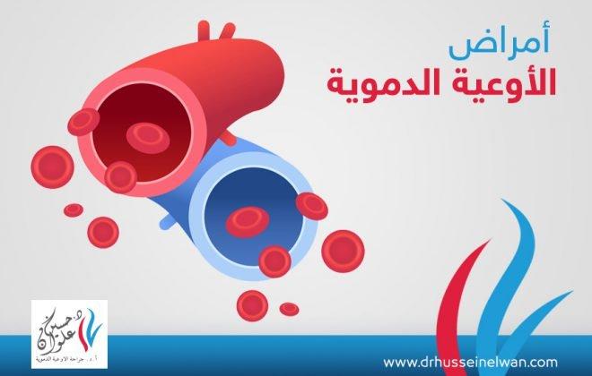 عيادة اوعية دموية