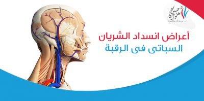 أعراض انسداد الشريان السباتي في الرقبة