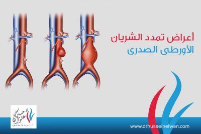 اعراض تمدد الشريان الاورطي الصدري