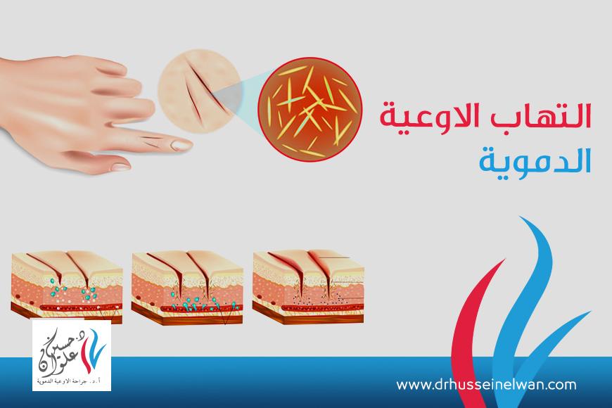 التهاب الاوعية الدموية