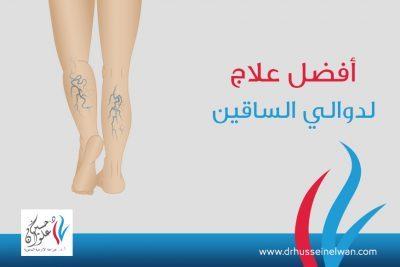 افضل علاج لدوالي الساقين
