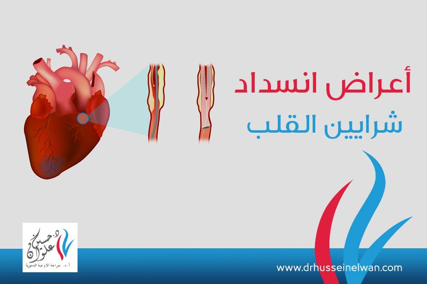 اعراض انسداد شرايين القلب