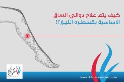 علاج دوالي الساق بقسطره الليزر