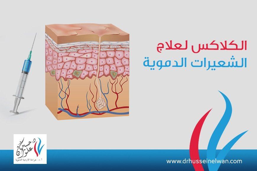 تقنية الكلاكس لعلاج الشعيرات الدمويه